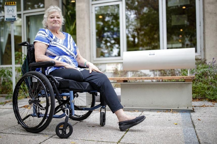 مضاعفات نادرة: بُترت ساقها بسبب فايروس كوفيد-19
